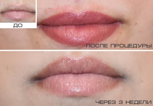 татуаж губ после зажипления