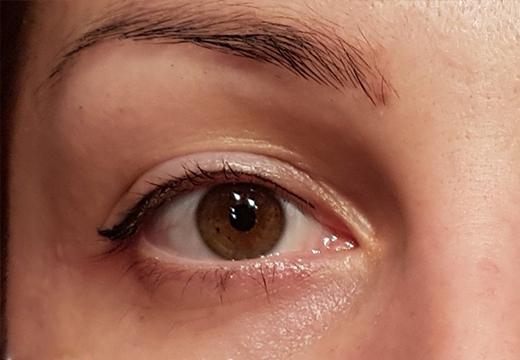 Правый глаз результат