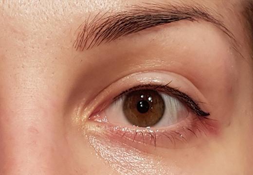 Левый глаз результат