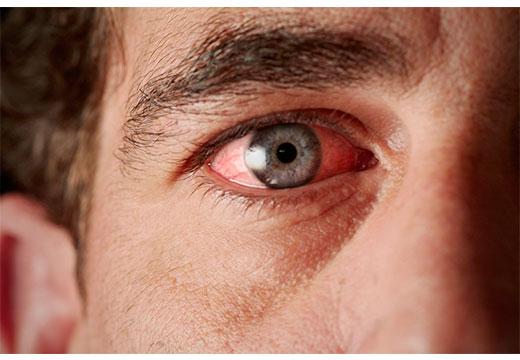 глаз с увеитом