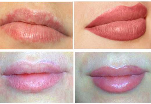 Визуальное увеличение губ